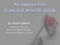 An approach to giant cell arteritis (GCA)